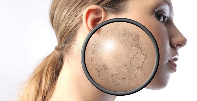Увлажняйте кожу после солярия