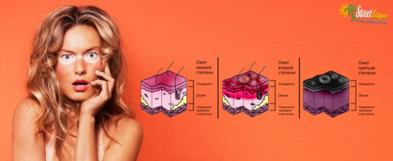 Эпидермис тоже состоит из нескольких слоёв